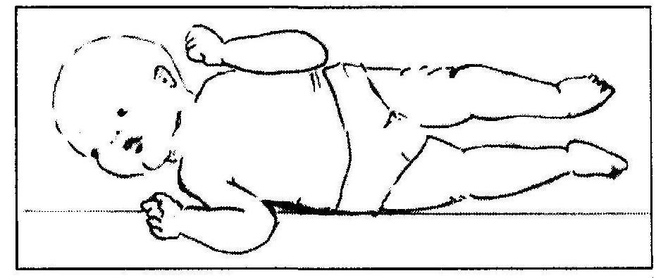 wzmożone napięcie mięśniowe